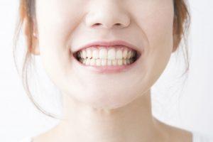 倉敷市玉島・新倉敷の歯医者 さわき歯科のホワイトニング