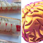 「脳の老化」には「歯」が関係、歯科健診のメリット